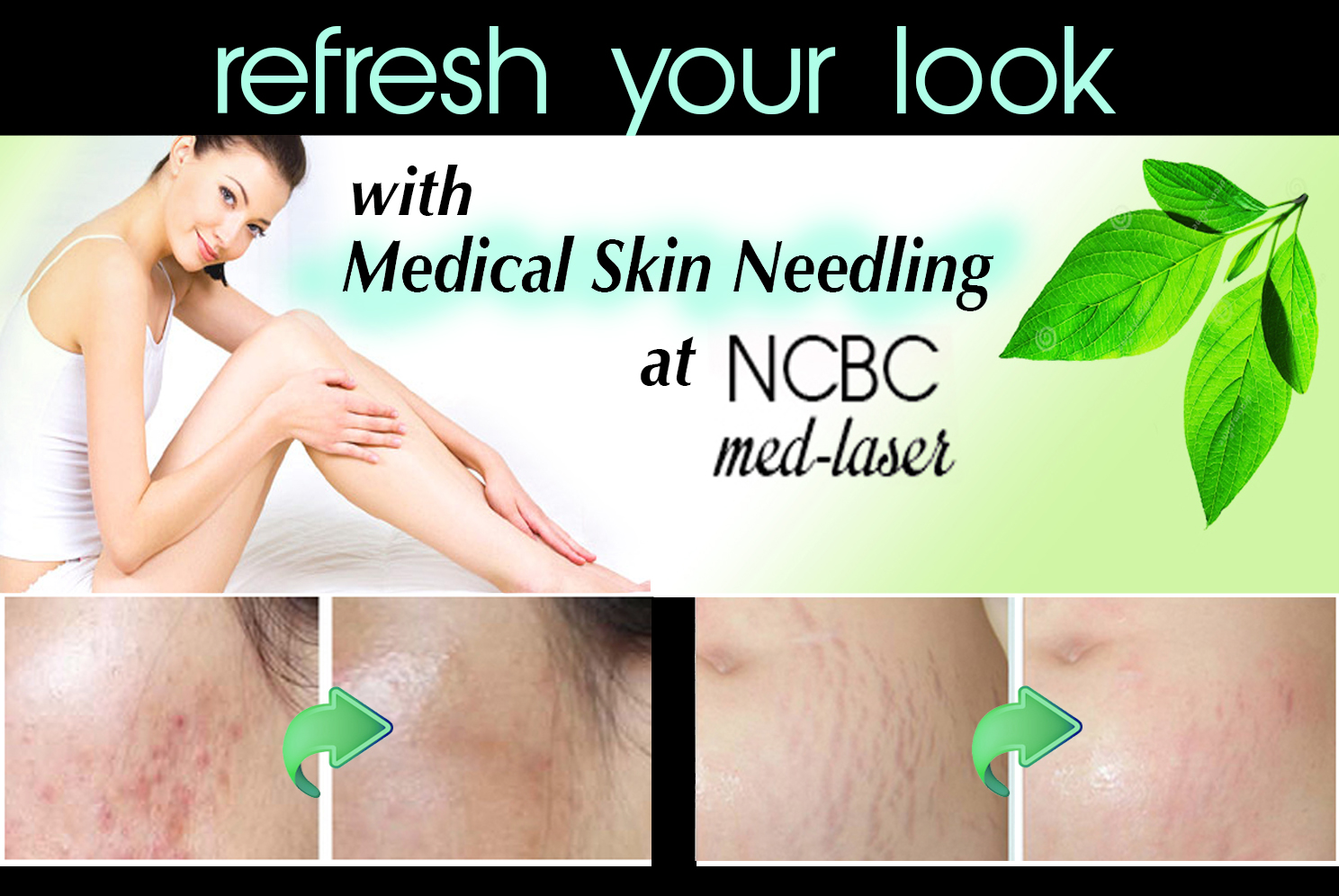 Skin Needling with before and after