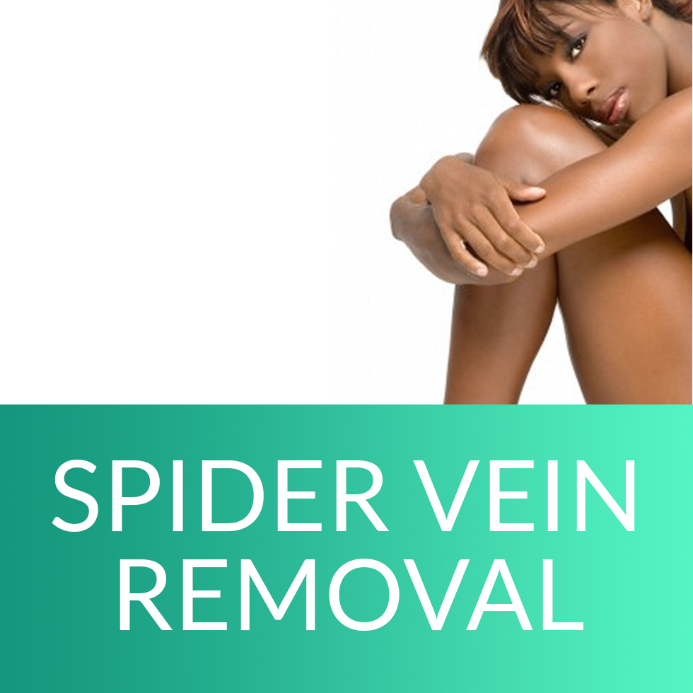 spider vein removal