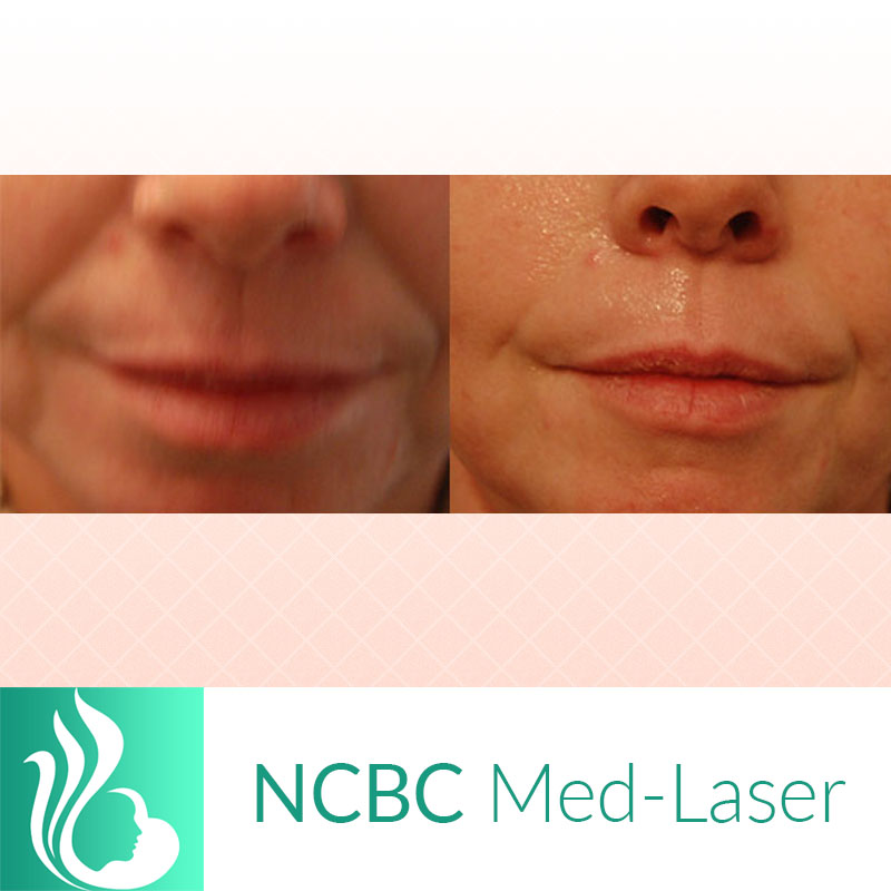 NCBC Med-Laser | Skin Rejuvenation Clinic in Toronto | Dermal